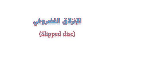 الإنزلاق الغضروفي (Slipped disc)