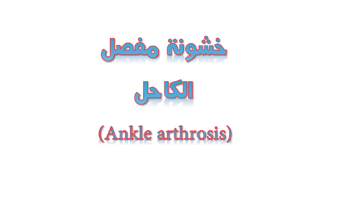 خشونة مفصل الكاحل (Ankle arthrosis)